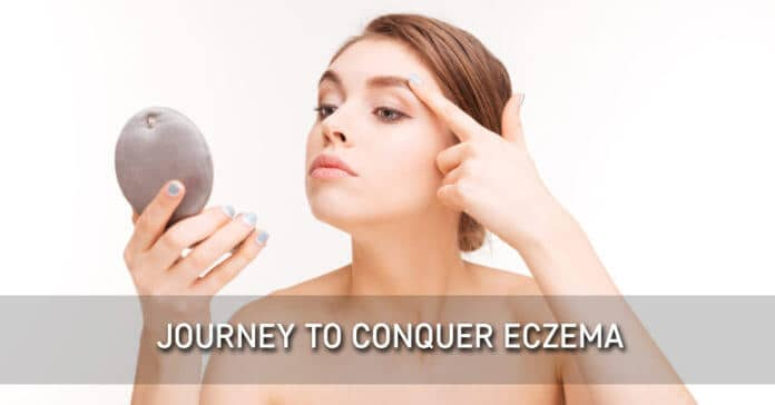 Journey to Conquer Eczema
