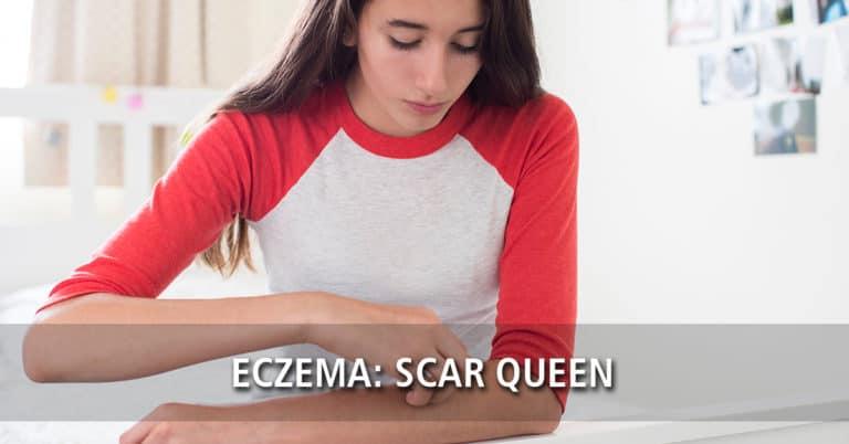 Eczema: Scar Queen