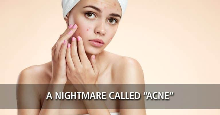 """A Nightmare Called """"Acne"""""""