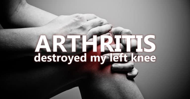 Arthritis Destroyed my Left Knee