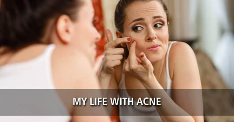 My Life with Acne