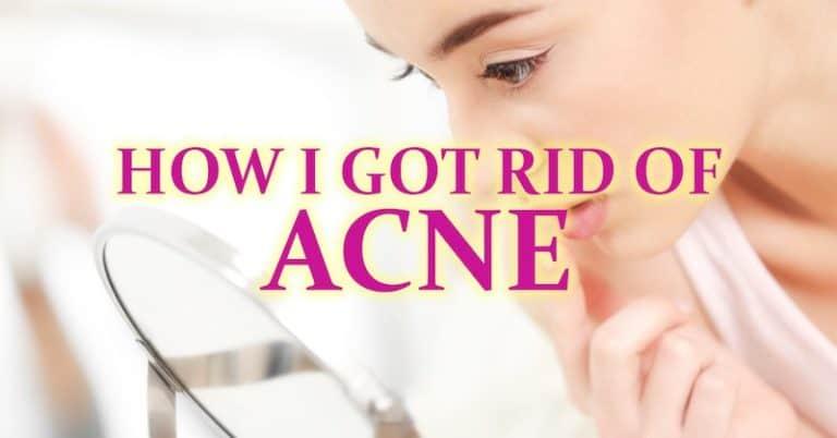 How I️ Got Rid of Acne