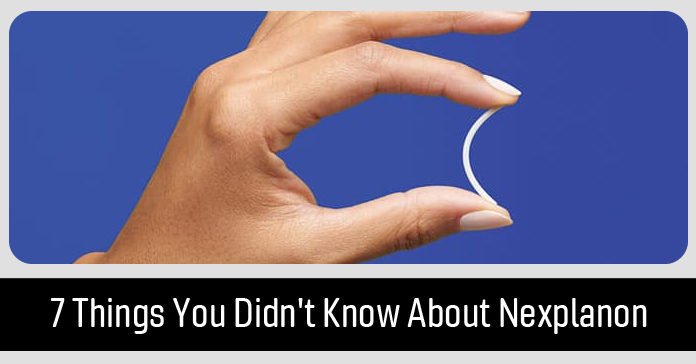 7 Things You Didn't Know About Nexplanon
