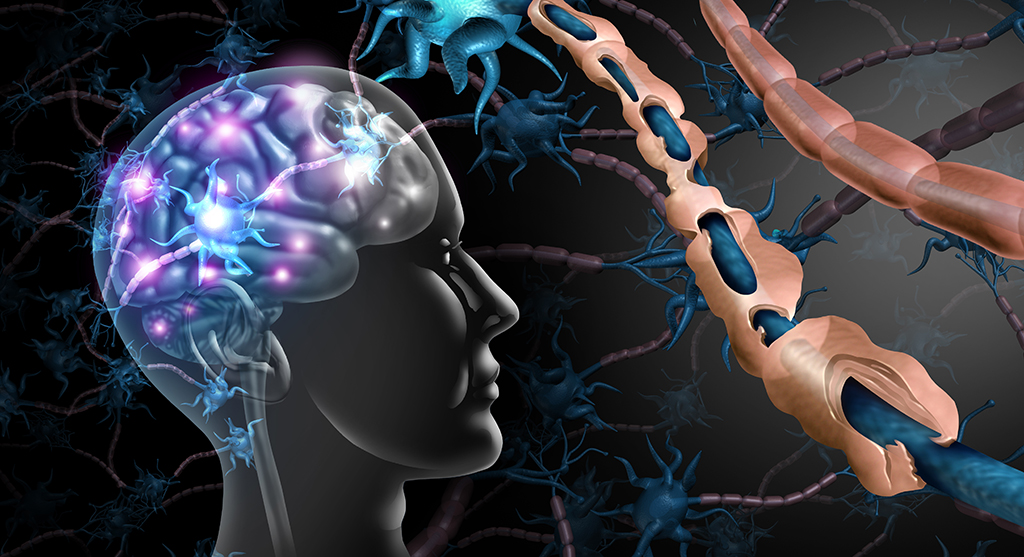 multiple sclerosis in brain